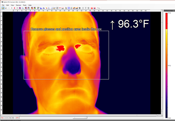 Thermal Images of fever suspects can be stored automatically